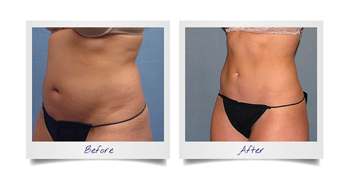 Fat Freezing Before & After