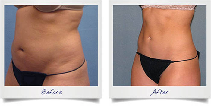 fat freezing before and after photographs